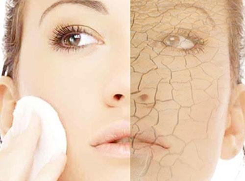 Điều gì là cần thiết trong việc chăm dưỡng dành cho các cô nàng da khô?