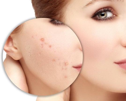 Những điều bạn phải làm để tránh mụn sẹo cho da
