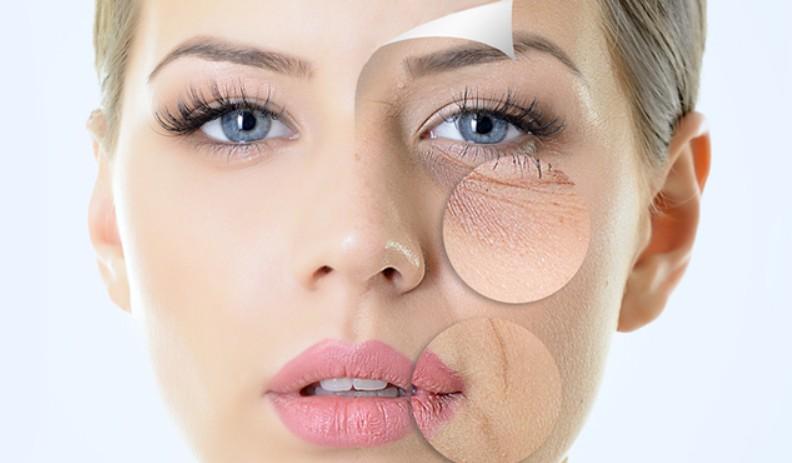 Điều gì là cần thiết trong việc chăm dưỡng dành cho các cô nàng da khô? Kho-da-mua-dong%20(1)